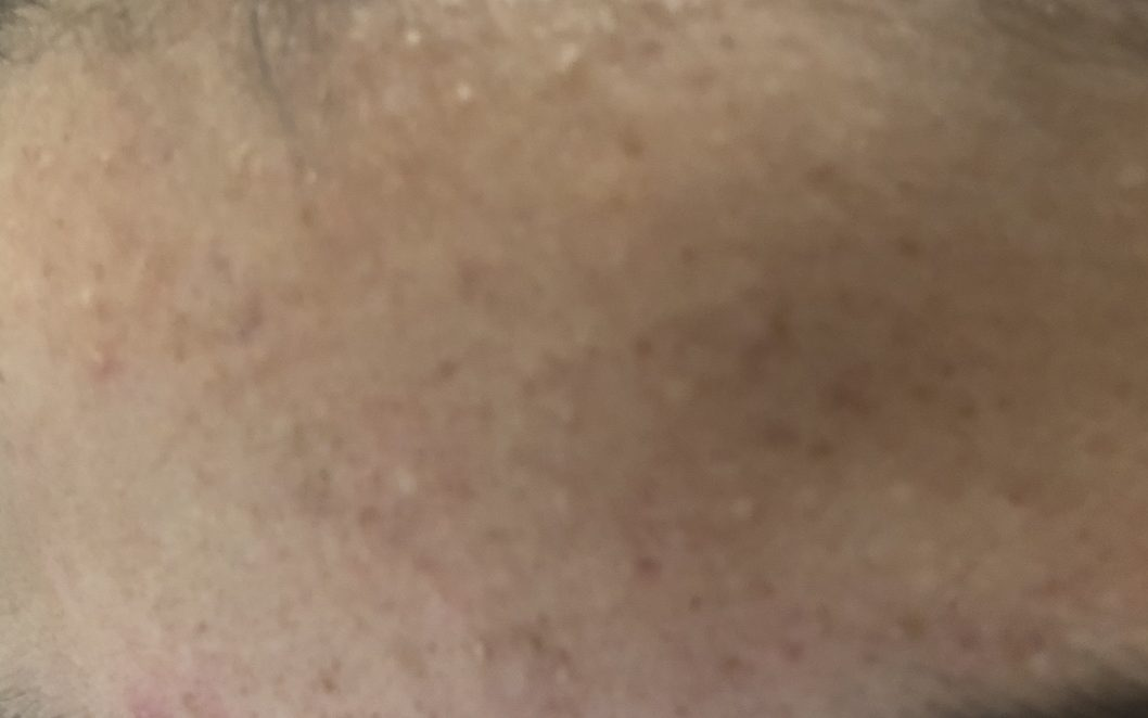 Photo of closed comedones on forehead.